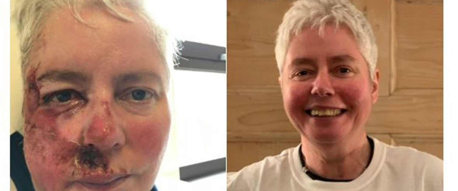 Tweet showing before and after pictures of Rosemary Collins