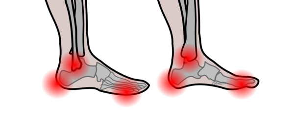 Image shows graphic of patient's feet with spots highlighting pressure.