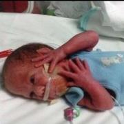 Neonatal patient.JPG