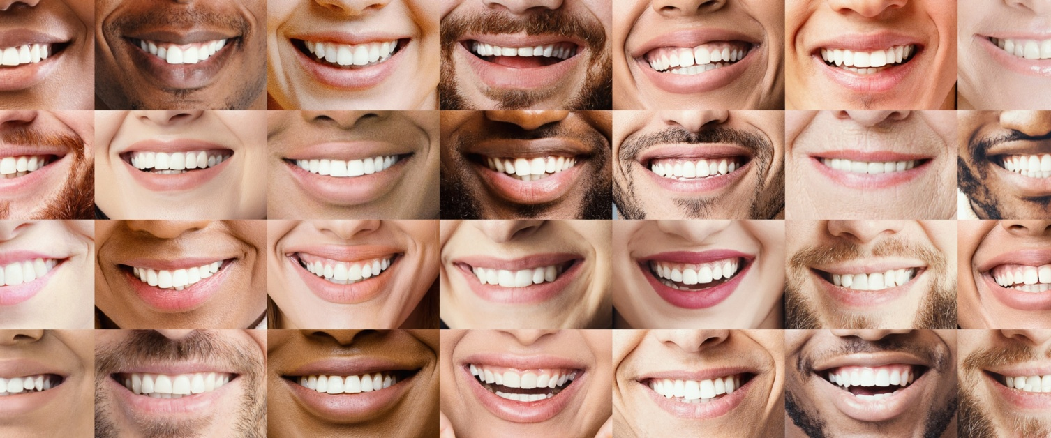 Image is a collage of lots of individual mouths smiling and showing their teeth.