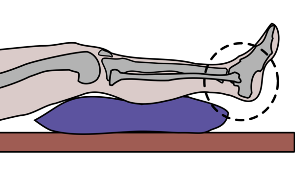 Image shows graphic of patient's feet supported by a cushion. Feet in air.
