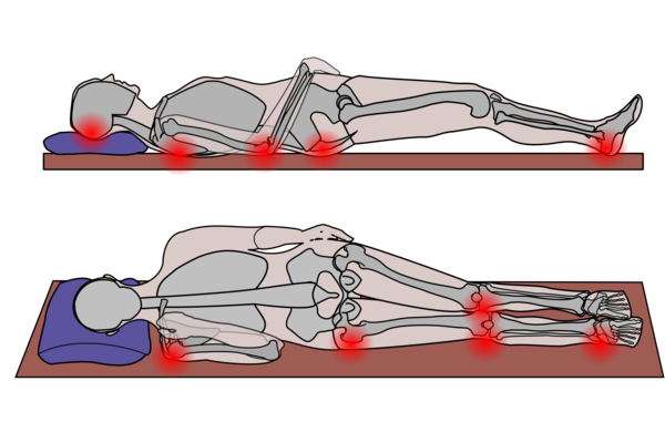 Image shows graphic of patient lying on back and lying on side.