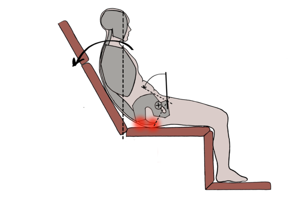 Image shows graphic of patient in a reclined chair. Red spots highlight pressure.