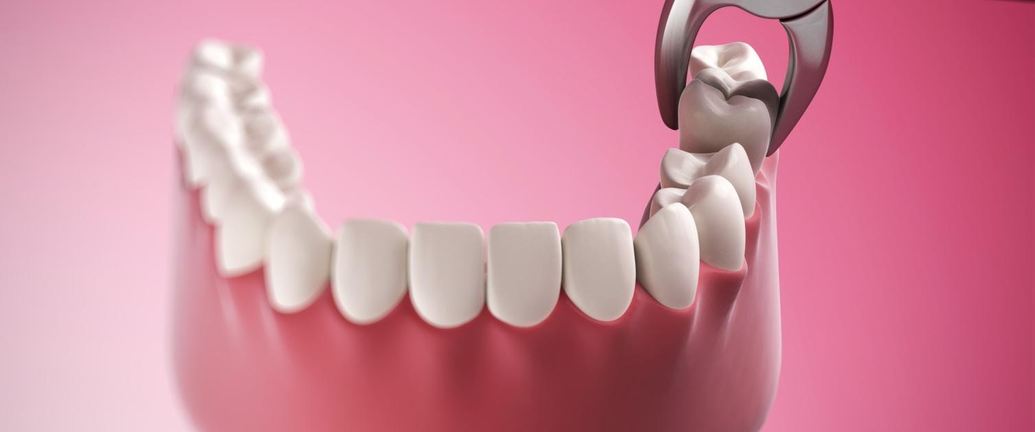 Representation of lower dental arch