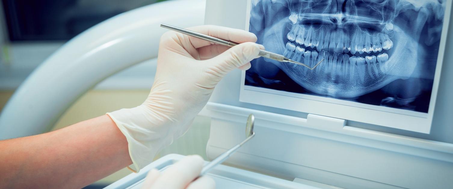 Dental screen